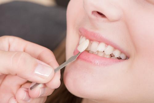 Kunststof tanden van ENTA